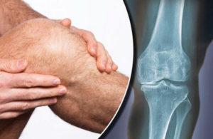 что можно есть при артрозе коленного сустава