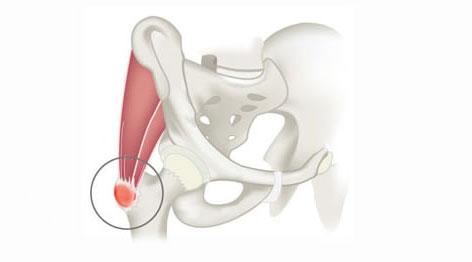 Трохантерит тазобедренного сустава: причины, симптомы, лечение