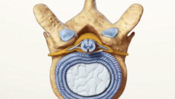 Артроз дугоотросчатых суставов: причины, симптомы, лечение