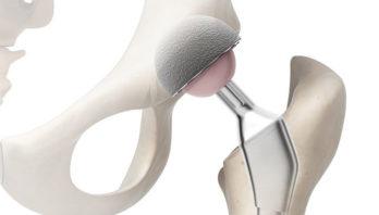 Реабилитация после эндопротезирования тазобедренного сустава: упражнения