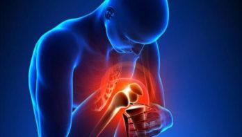 Артропатия: что это такое? Причины, симптомы, лечение