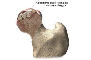 некроз и болезнь партеса