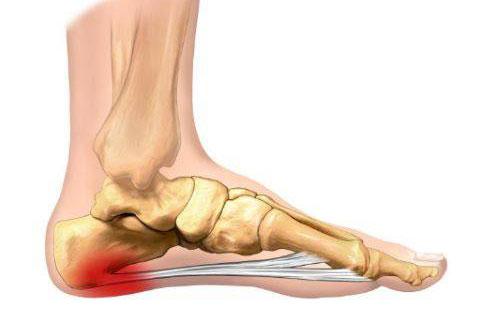 Артрит стопы – причины патологии, диагностика и лечение