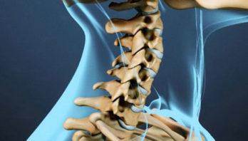 Шейный спондилез: причины, симптомы, диагностика и лечение