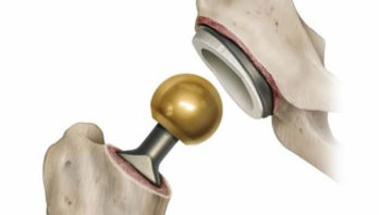 Эндопротезирование тазобедренного сустава: виды, протезы