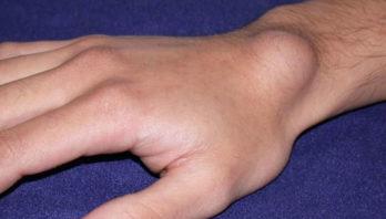 Гигрома запястья: причины, симптомы, лечение, профилактика