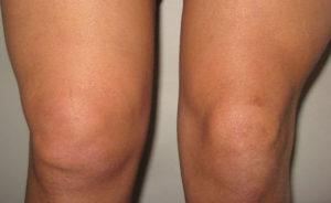 колени деформированные
