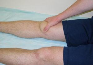 узнайте о диагностике отекших коленей