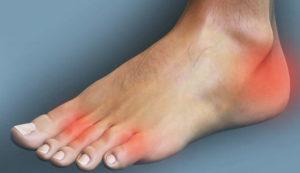 нога болит у стопы артрит