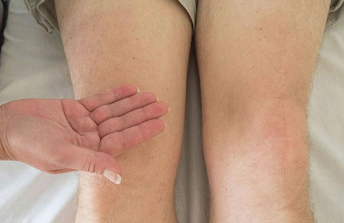 Лечение артроза коленного сустава в домашних условиях: компрессы и лфк