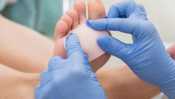 Натоптыши на ступнях: симптомы, причины, диагностика, лечение