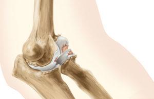 как и чем лечится остеоартроз