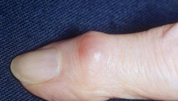 Шишки на пальцах рук: причины появления, симптомы, лечение