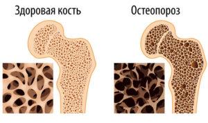 что нужно знать о диете при остеопорозе