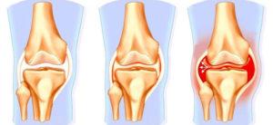 Изображение - Отек в области коленного сустава %D0%BE%D1%82%D0%B5%D0%BA-%D0%B8-%D0%BA%D0%BE%D0%BB%D0%B5%D0%BD%D0%BE-300x138