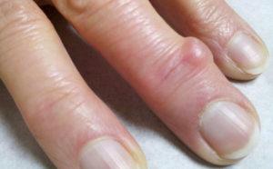 из-за чего появляются шишки на пальцах