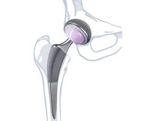 о протезах и их профилактике