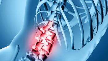 Остеохондроз 3 степени: причины, проявления, диагностика, лечение