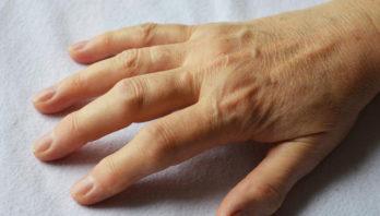 Полиартроз: причины, симптомы, диагностика и лечение