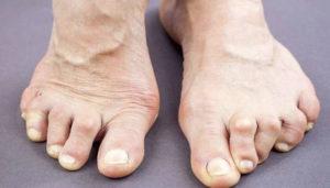 патологии суставов какие бывают и лечение