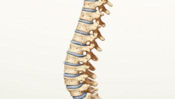 Спондилез поясничного отдела: симптомы, причины и лечение