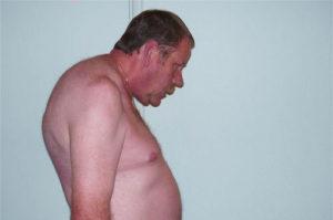 болезнь бехтерева у мужчин, диагностика