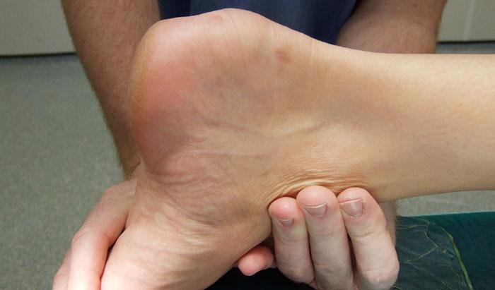 Бурсит пятки: причины, симптомы, диагностика, лечение