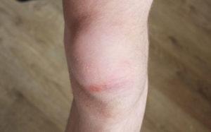 симптоматика разрывов колена