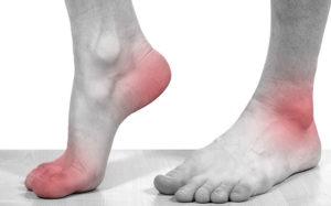 суставы рук и ног профилактика