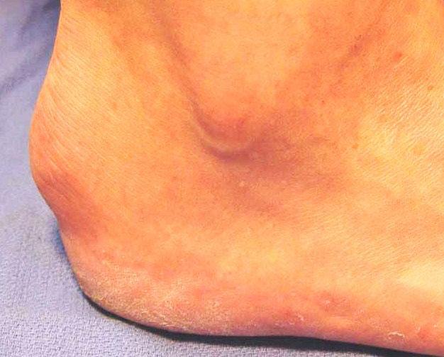 Болезнь Шинца: симптоматика, причины, диагностика, лечение