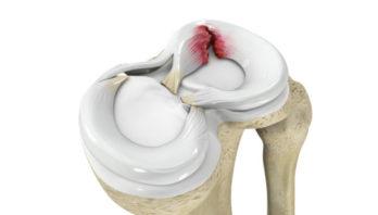 Дегенеративные изменения менисков коленного сустава: патологии