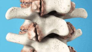 остеохондроз 3 степени как лечить