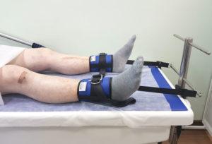 Тракционное вытяжение сустава