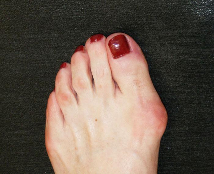 Растет косточка на ноге у большого пальца – причины, диагностика, лечение