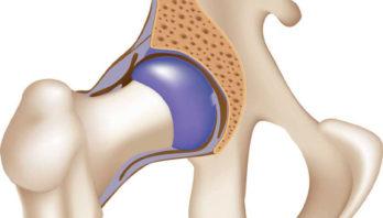 Лечение коксартроза тазобедренного сустава без операции: лекарства, физиотерапия