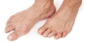лечение стопы, как можно вылечить артроз