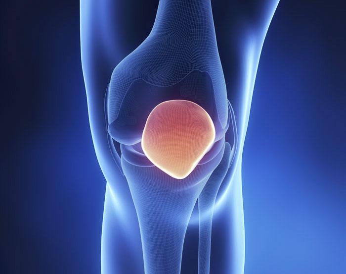 Причины артрита коленного сустава