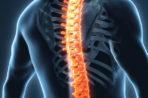 Спондилез пояснично-крестцового отдела позвоночника: причины и лечение