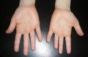 что происходит с руками при таком заболевании