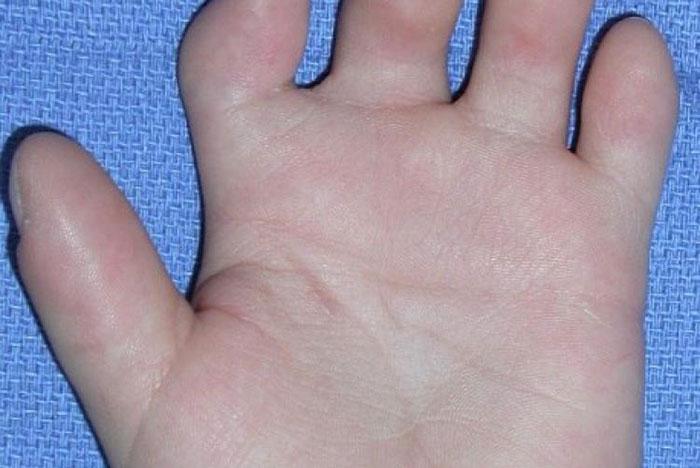 Брахидактилия: что за болезнь? Симптомы и лечение
