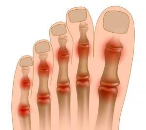 о том как развивается артроз на пальце