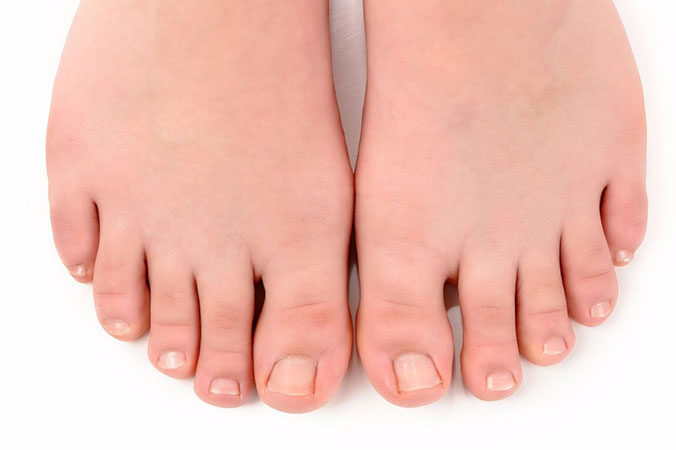 Артроз большого пальца ноги: причины, диагностика и терапия