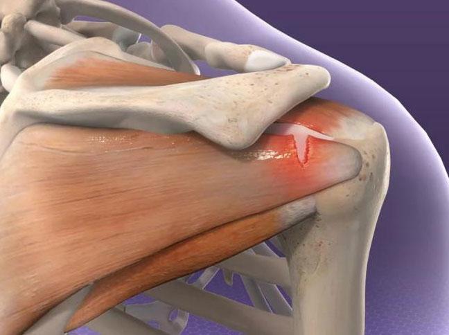 Плексит плечевого сустава: почему появляется? Симптомы, лечение