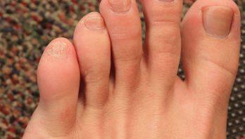 Ушиб мизинца на ноге: характеристика, симптомы, лечение