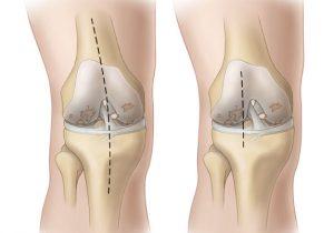 коленка и гонартроз, эндопротез