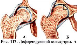 Деформирующий артроз тазобедренного сустава: что это? Симптомы
