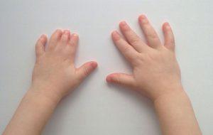 руки у детей врожденное заболевание