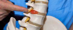 Протрузия дисков: причины появления, симптоматика, терапия