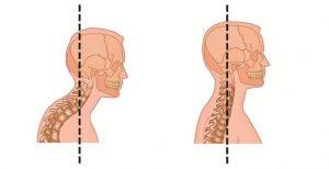физиотерапия и лфк, причины при лордозе шеи