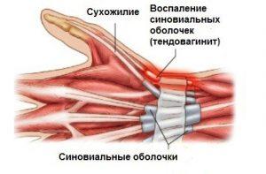 строение руки и заболевание